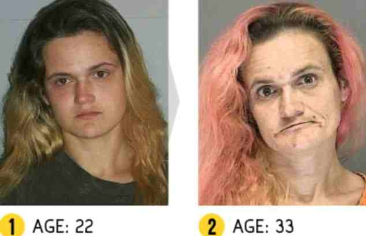 top-10-shocking-before-and-after-drug-use-photos