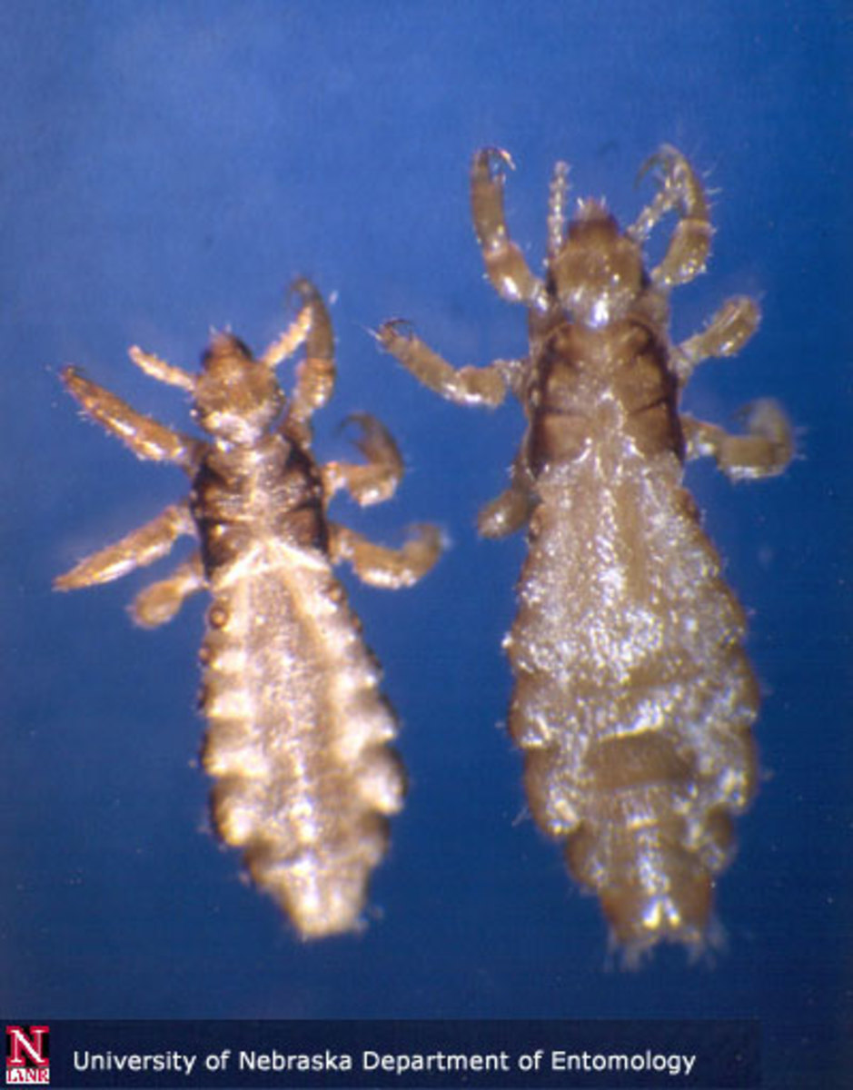 The Truth About Head Lice