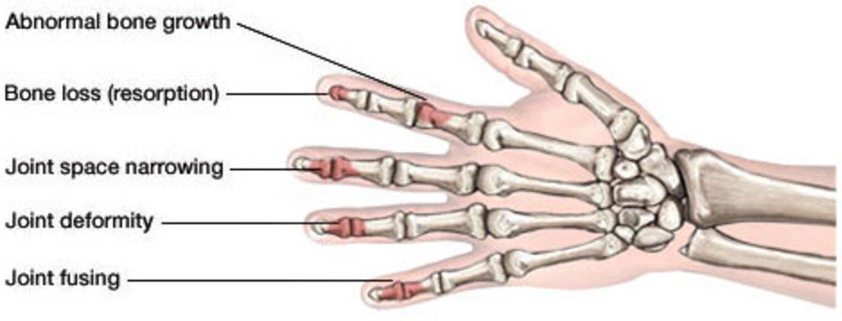 phil-mickelson-pga-champ-diagnosis-psoriatic-arthritis