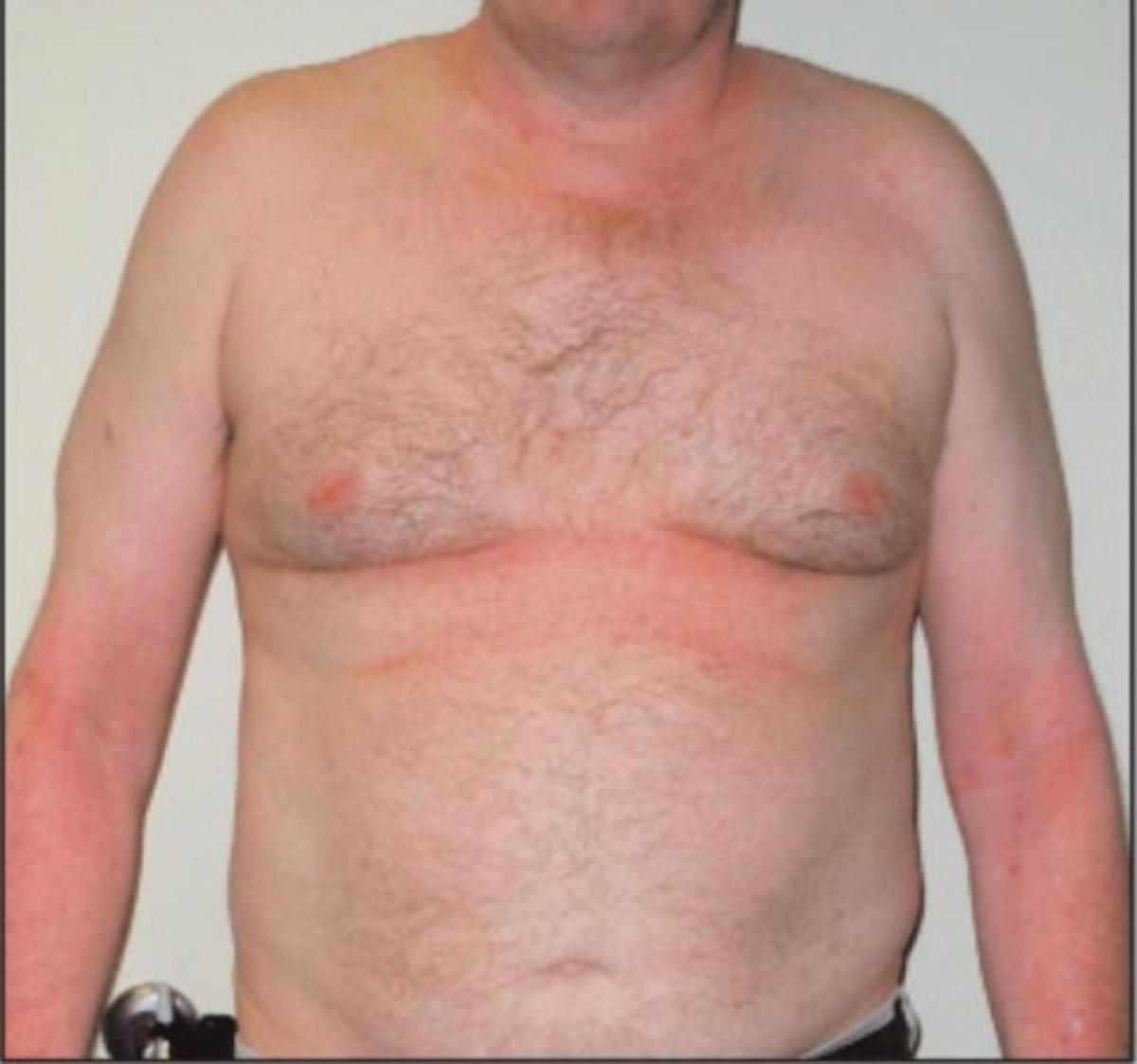 Cold urticaria | DermNet New Zealand