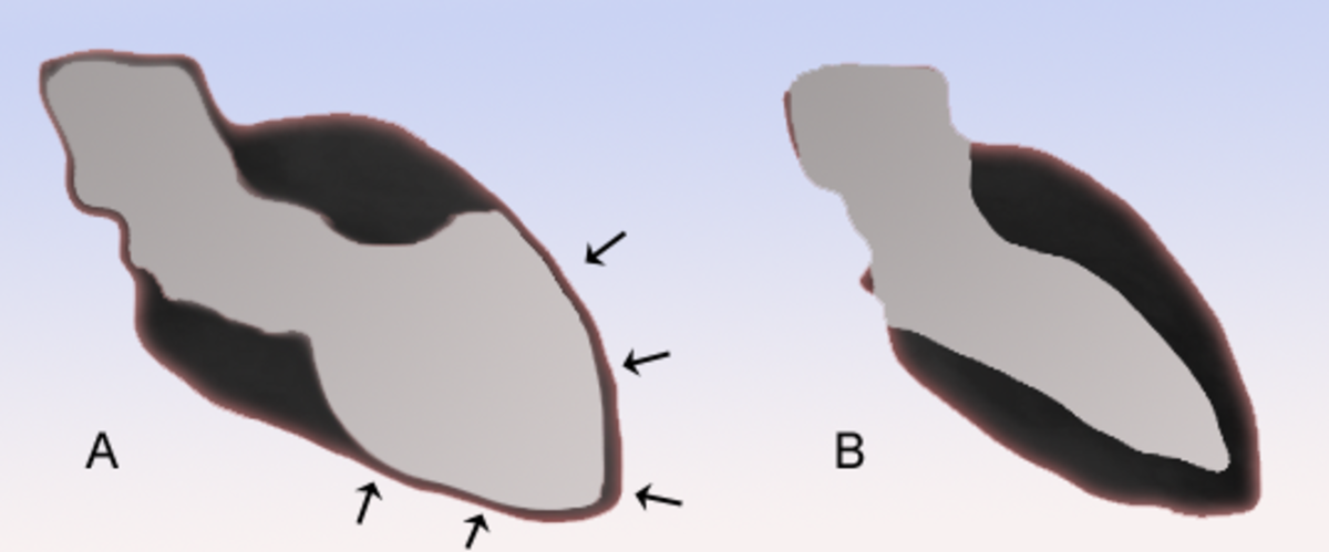 Schematic representation of takotsubo cardiomyopathy (A) compared to the situation in a normal person (B)