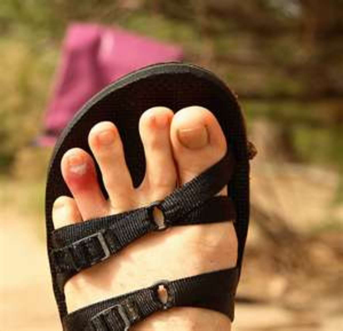 Symptoms You Have A Broken Pinky Toe Or Stubbed Toe