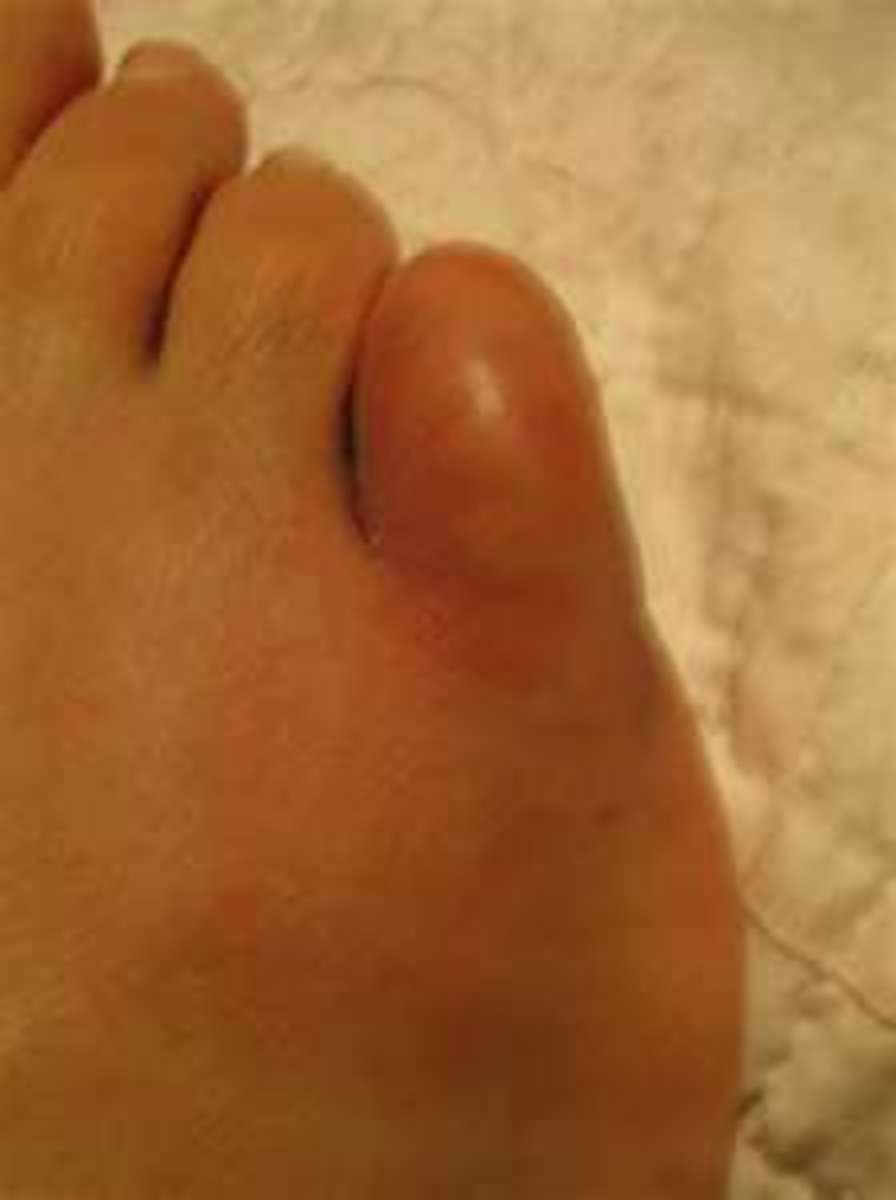 what-to-do-for-a-broken-toe