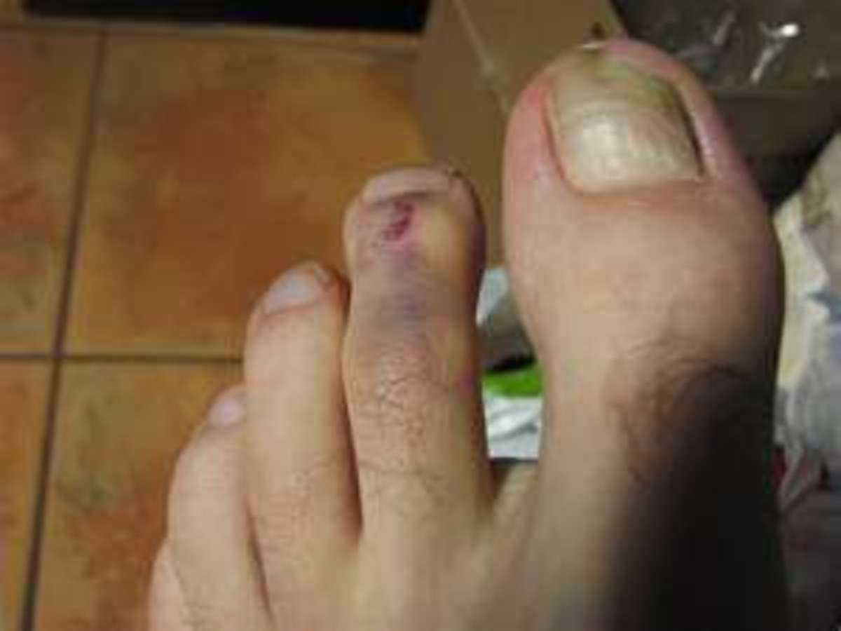 Purple stubbed toe How to