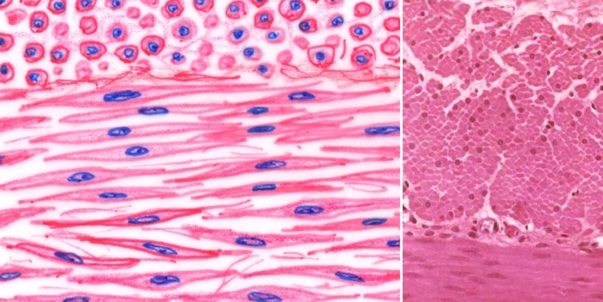 Microscopic appearance of smooth muscle cells