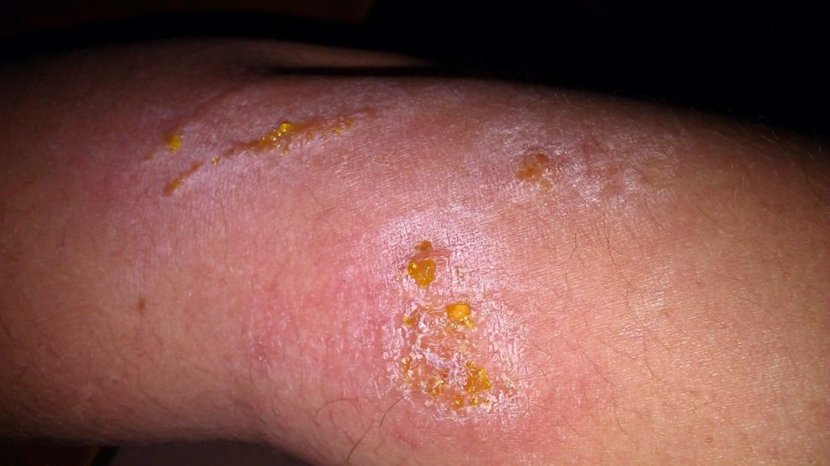 Poison Ivy Rash Oozing Yellow Puss