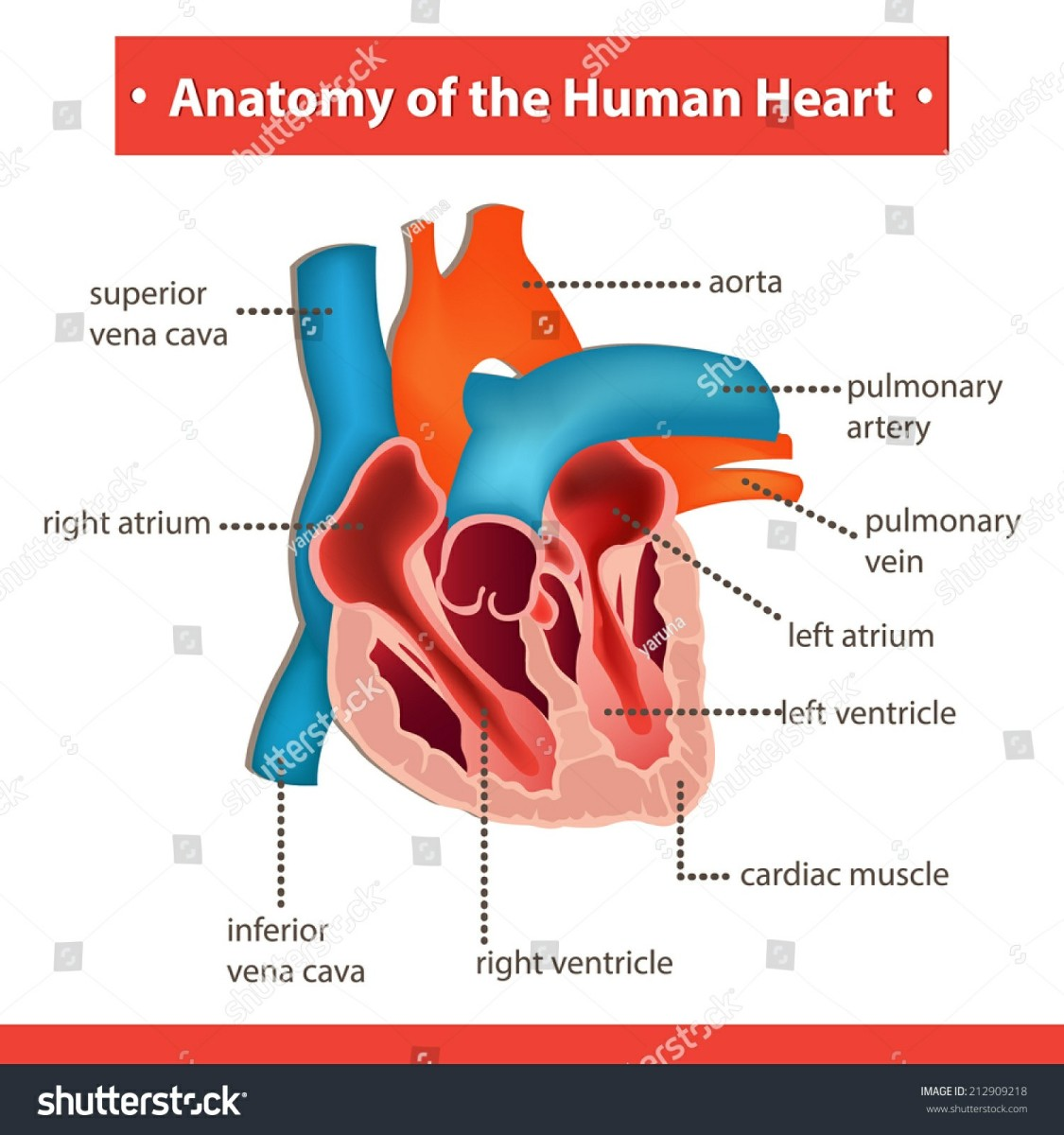 Symptoms of Children's Heart Defects - VSD and SVT: Our Experience