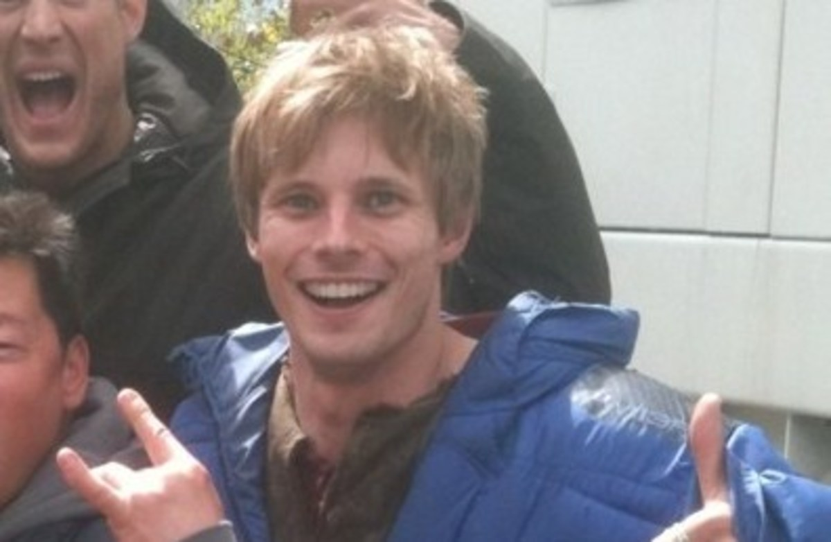 did-bradley-james-fix-his-teeth-why-thats-bad