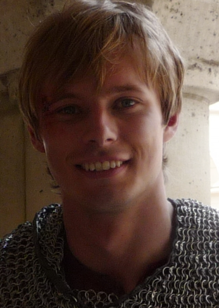 Did Bradley James Fix his Teeth? Why that's bad