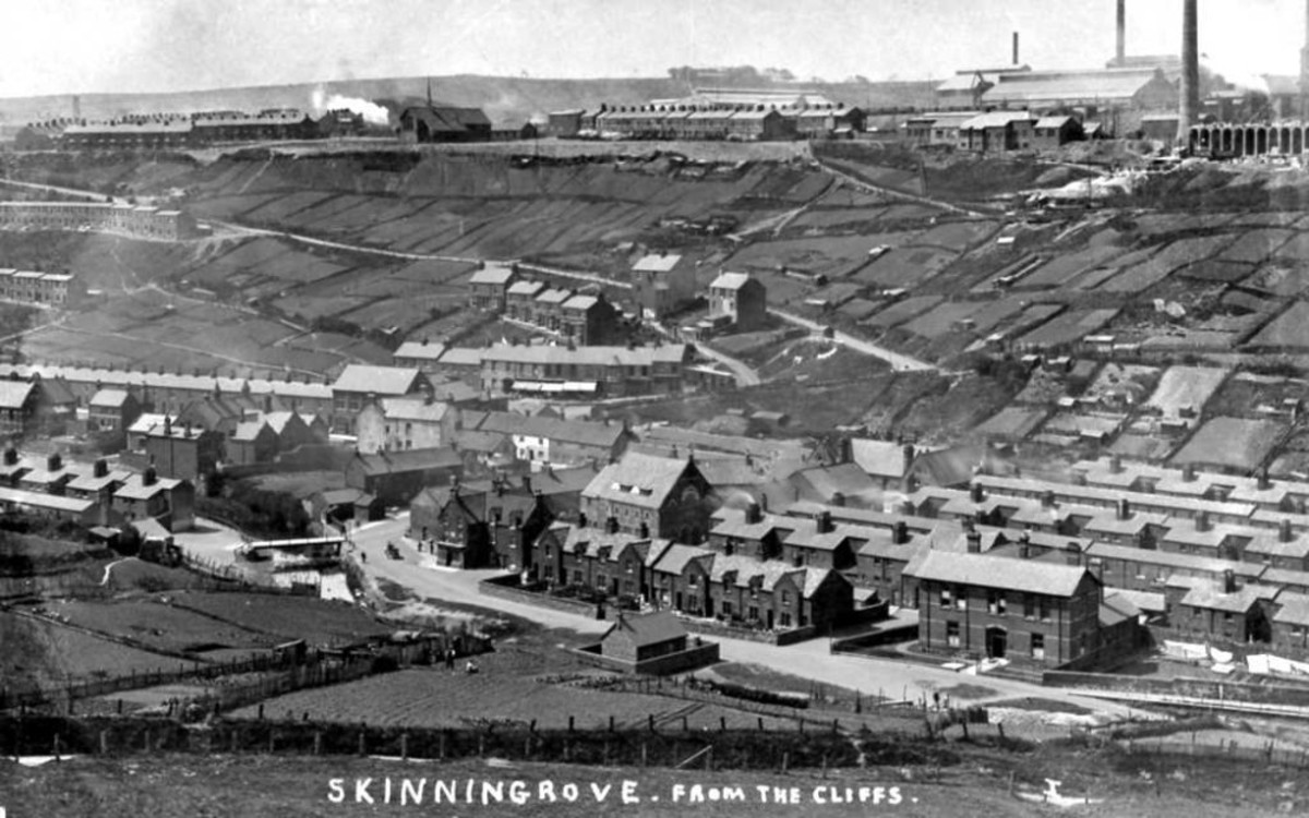 Skinningrove and works in more prosperous times, up until the 1960s. The nearby village of Carlin Howe, across the A174 Whitby road housed many of the workforce for Skinningrove works and nearby ironstone mines