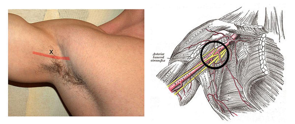 Axillary Nerve Block For Regional Anesthesia