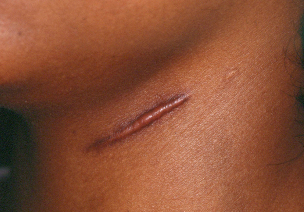 Removing Face Scars, Keloid and Stretch Marks