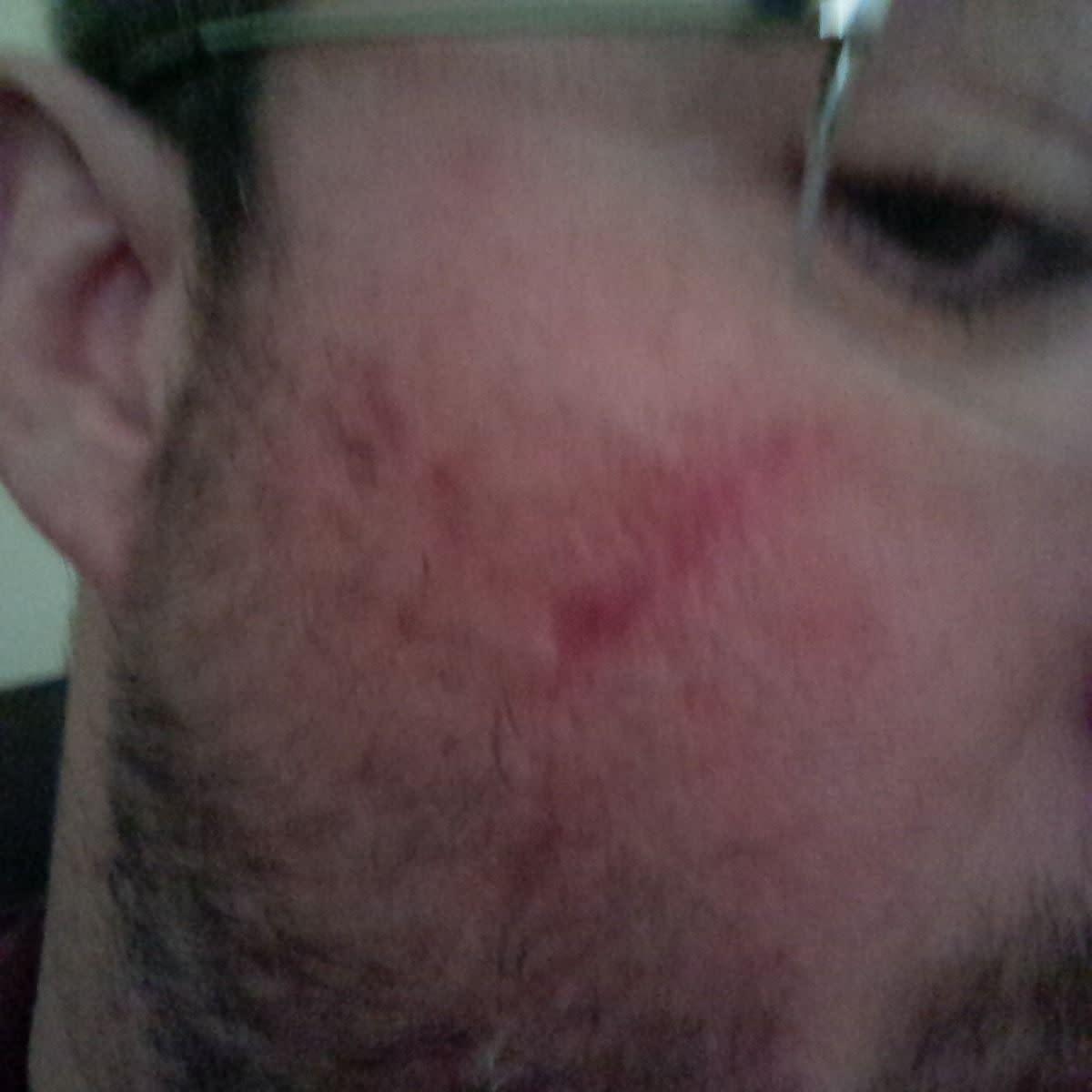 bio-oil-for-scars