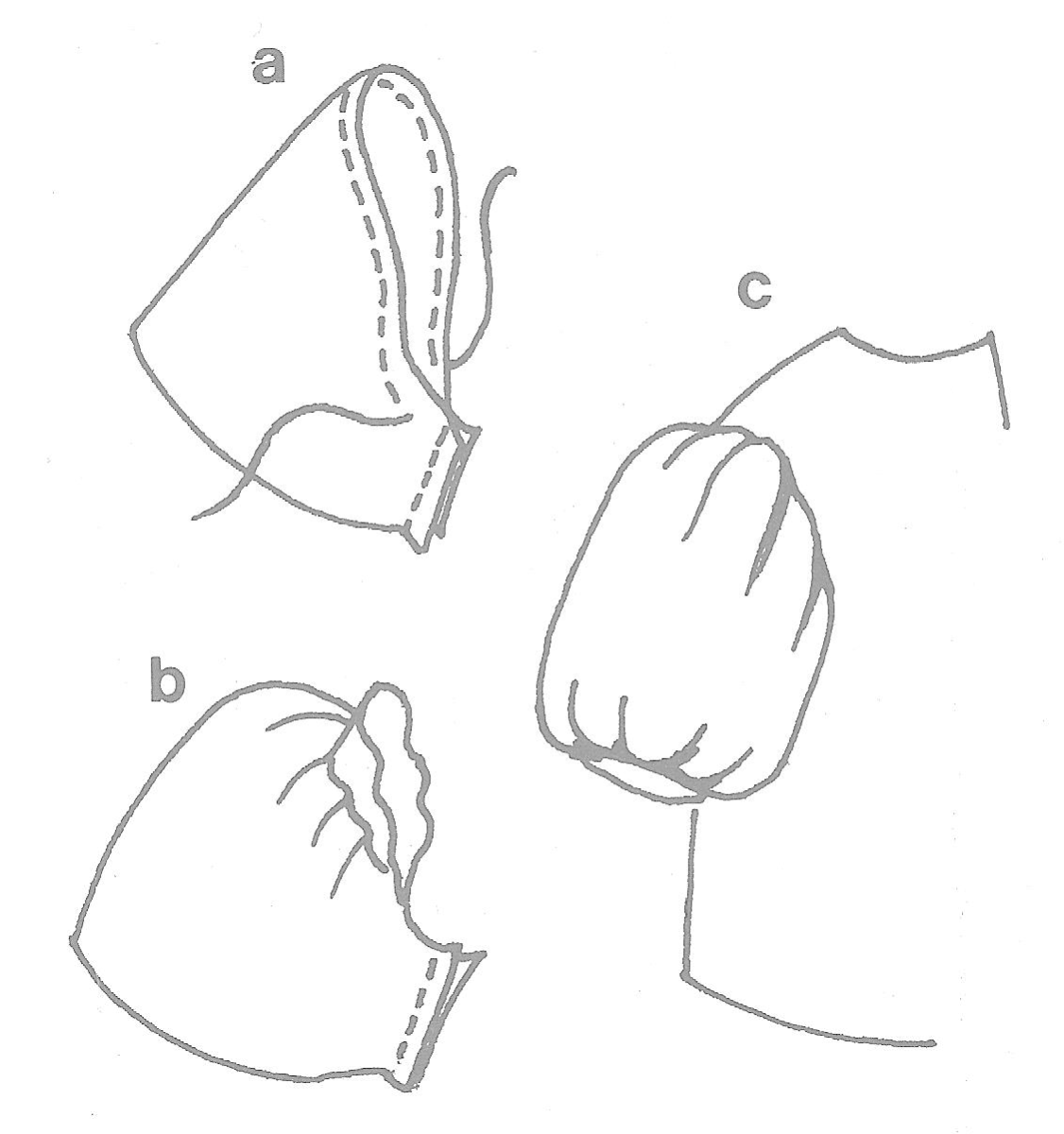 Figure 5a - Figure 5b - Figure 5c - Inserting the Sleeve