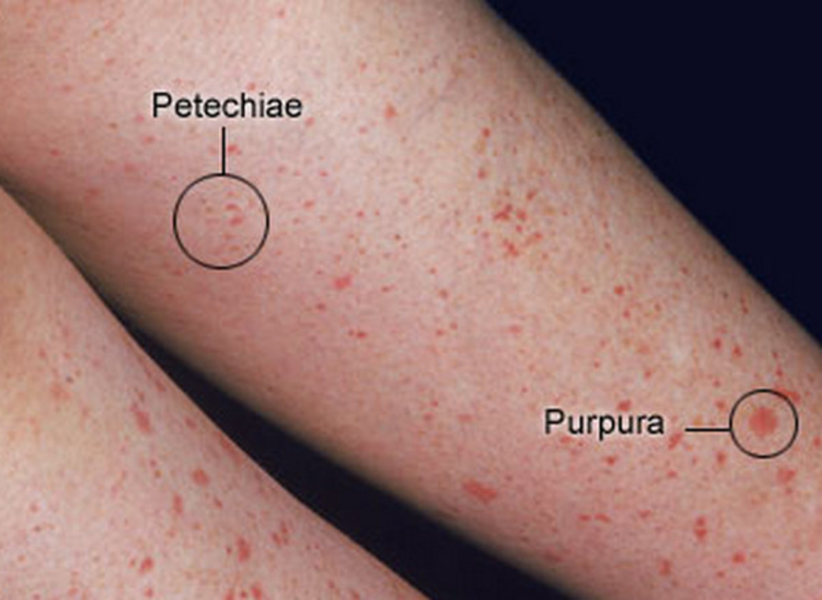 The condition appears on the legs, along with purpura (bruises(