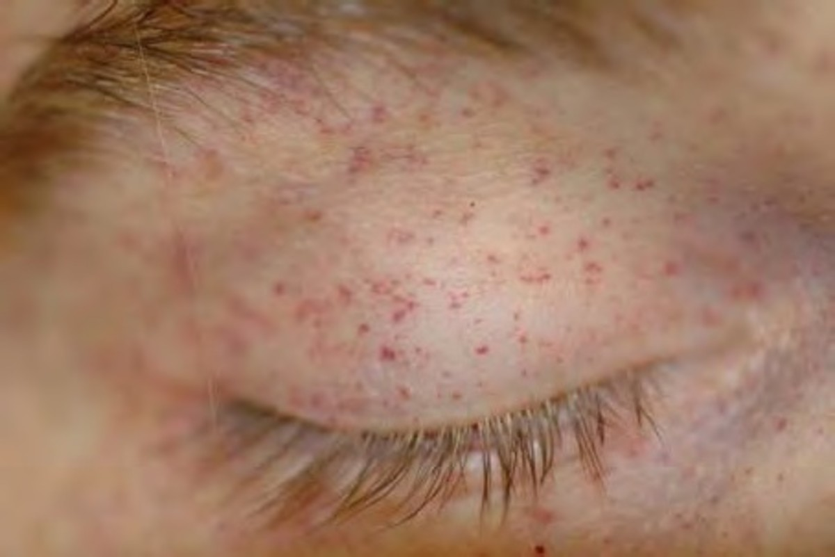 petechiae - symphtoms of hemorhagic spots | hubpages, Human Body