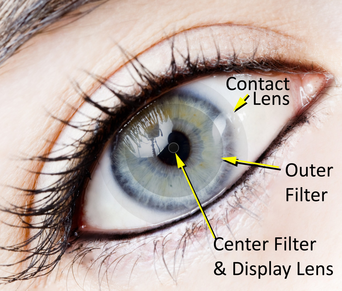 Do Contact Lenses Cause pressure increase in eyes?