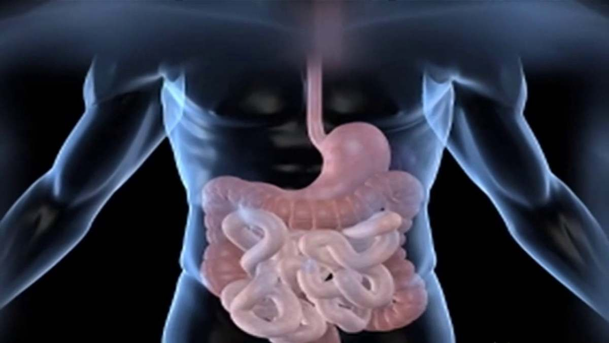 Which Symptoms May Strongly Indicate That You Have Irritable Bowel Syndrome?