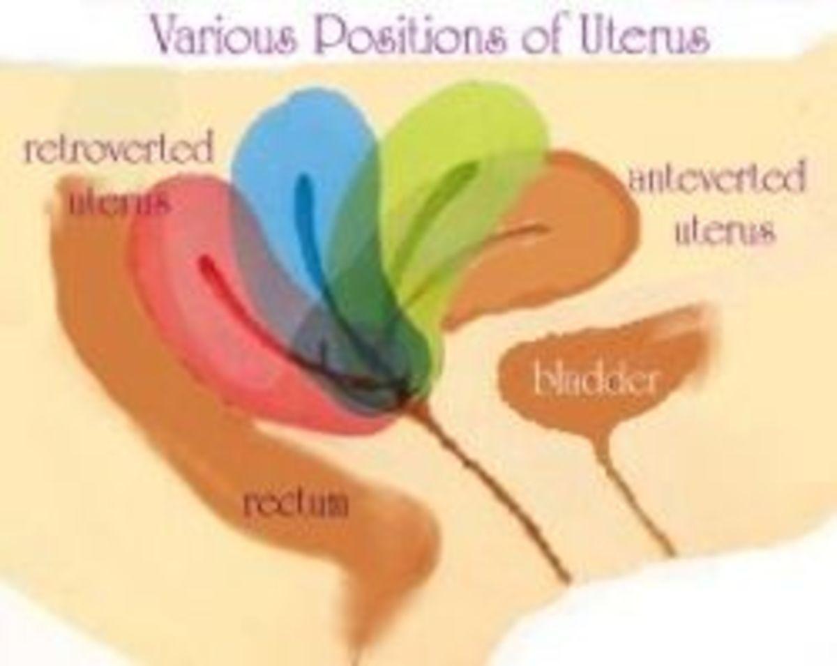 6 weeks tilted uterus ultrasound Tilted/Retroverted Uterus