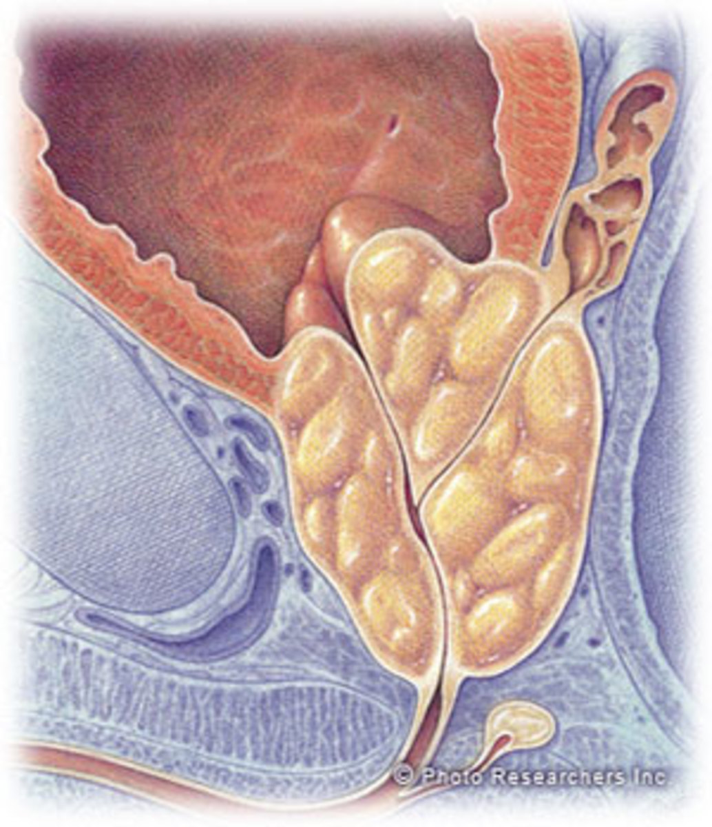 Prostate enlarged