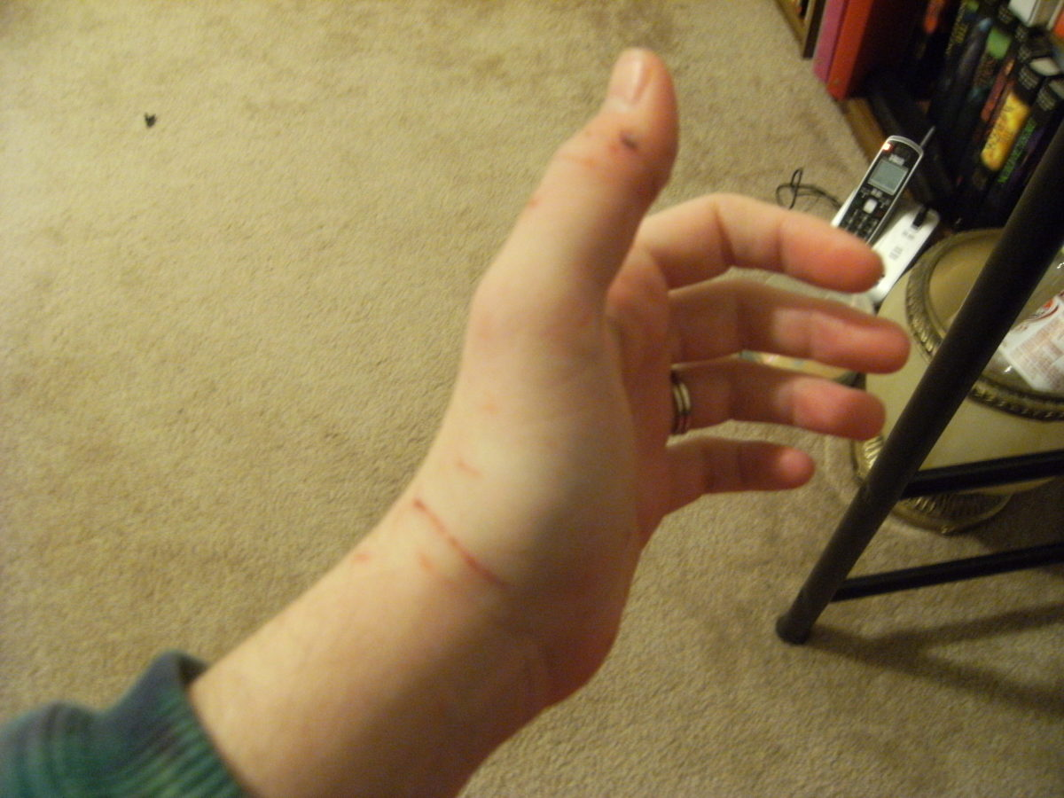 You can't see it too well here, but this is the thumb with nerve damage. He bit it repeatedly.