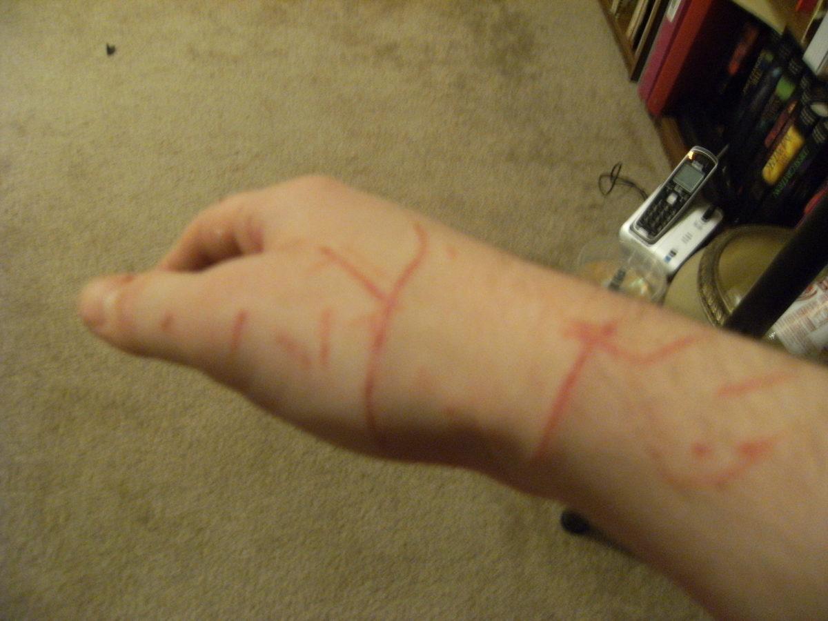 Cat scratches requiring treatment