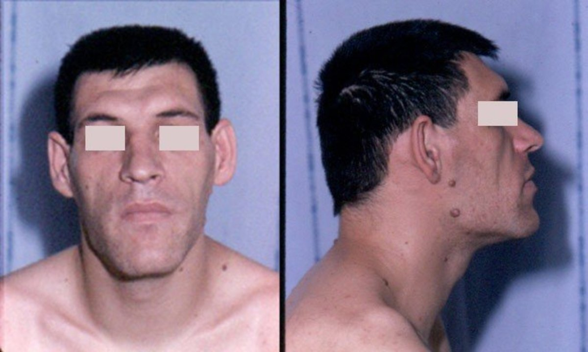 This man displays the classic facial characteristics of acromegaly.