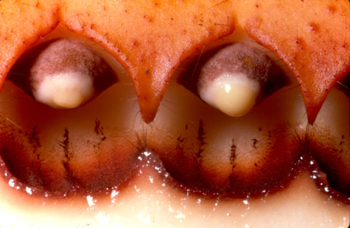 Close-up view of two Rafflesia anthers dehiscing the pollen in a sticky fluid.