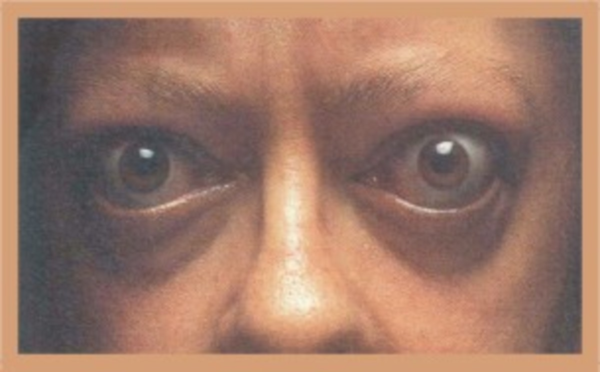 Thyrotoxicosis can cause the eyes to bulge.