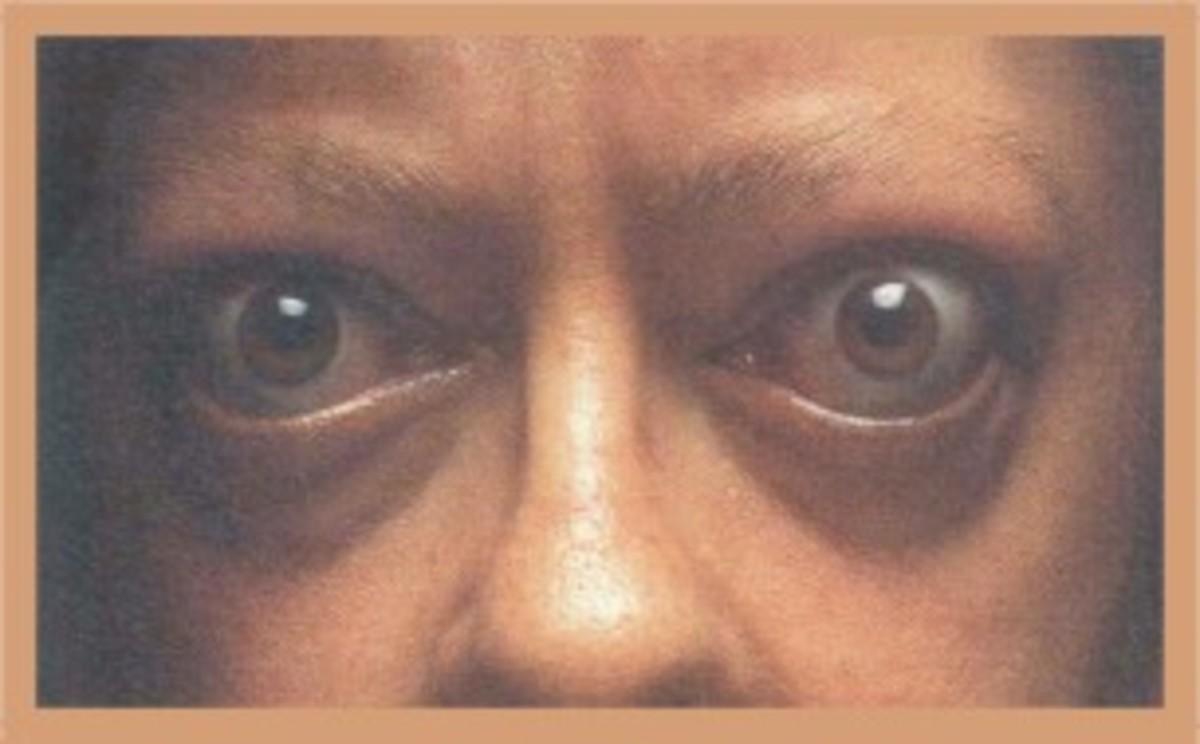 Thyrotoxicosis can cause the eyes to bulge.