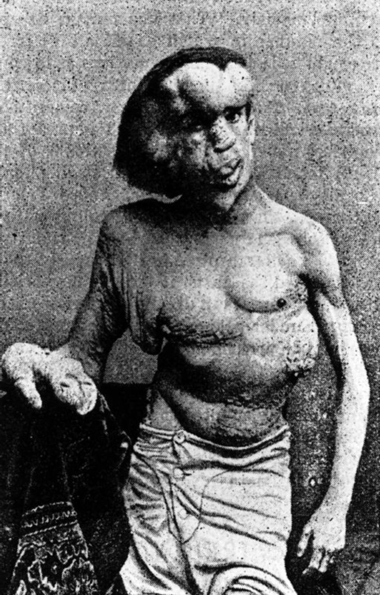 Actual photos of the Elephant Man