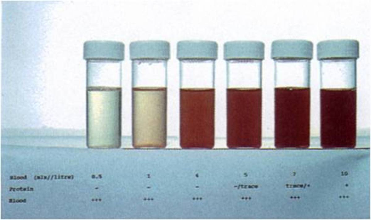 BLOOD IN URINE (HEMATURIA)