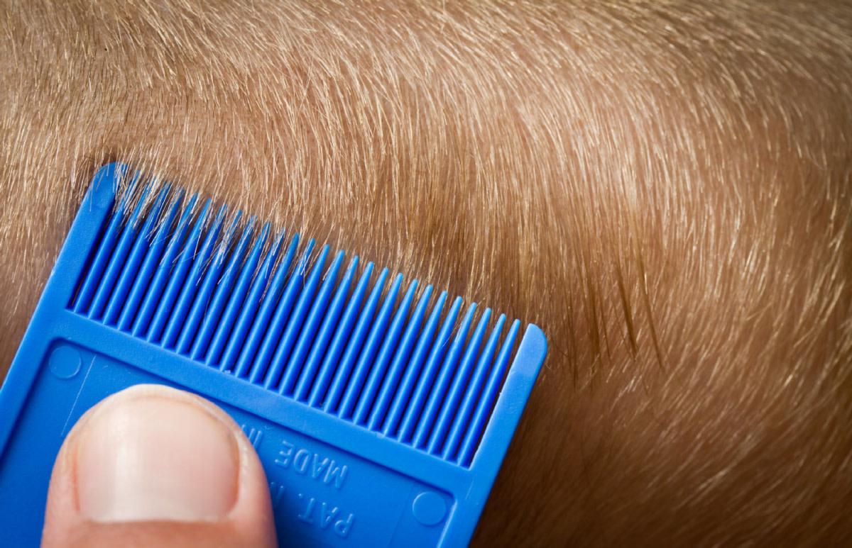 resurgence-of-head-lice-in-the-uk