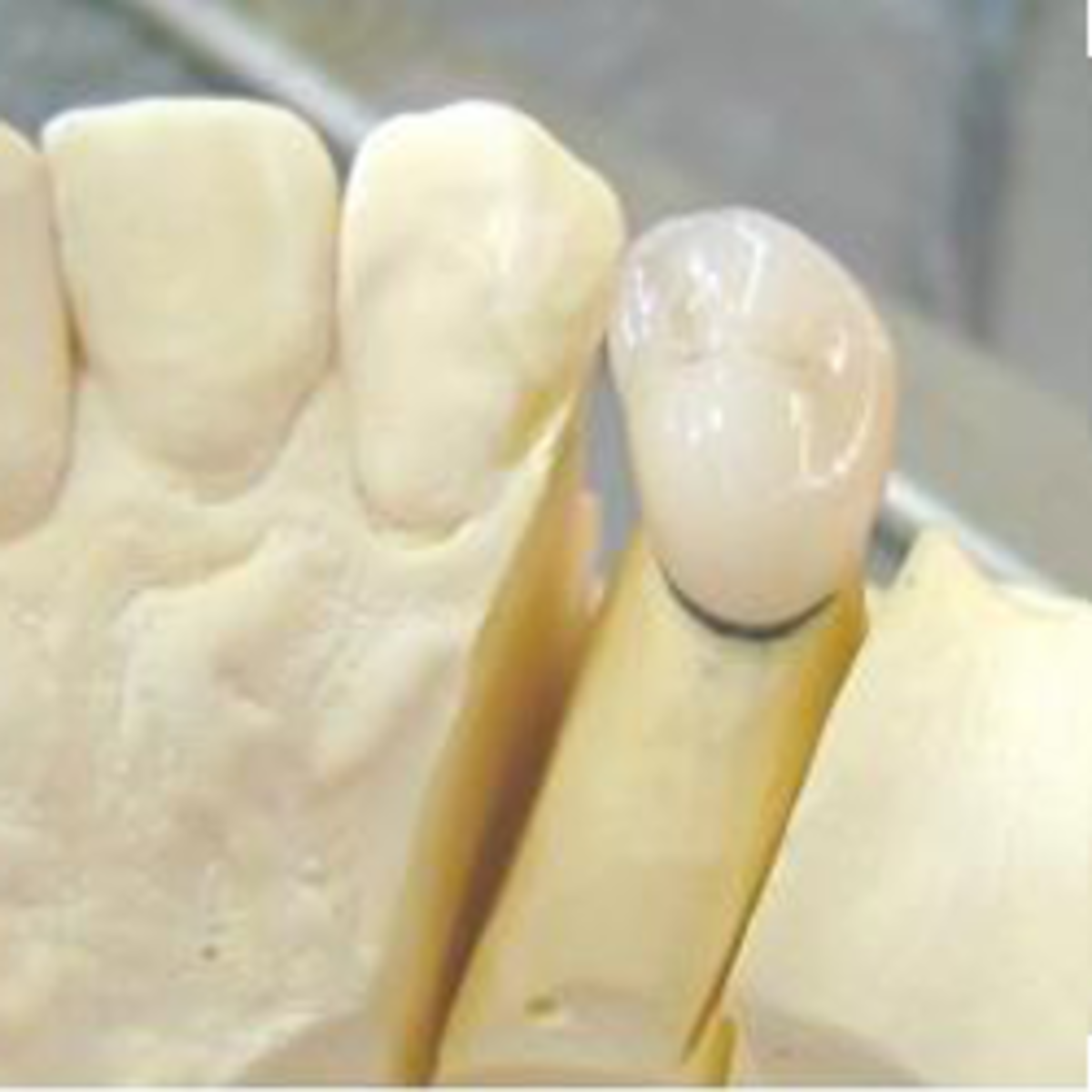 ★ How Dental PFM Crowns are Made | Step-by-Step Photos ★