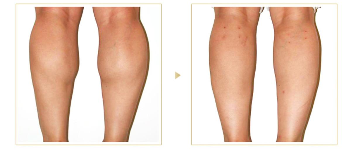 slimmer-legs