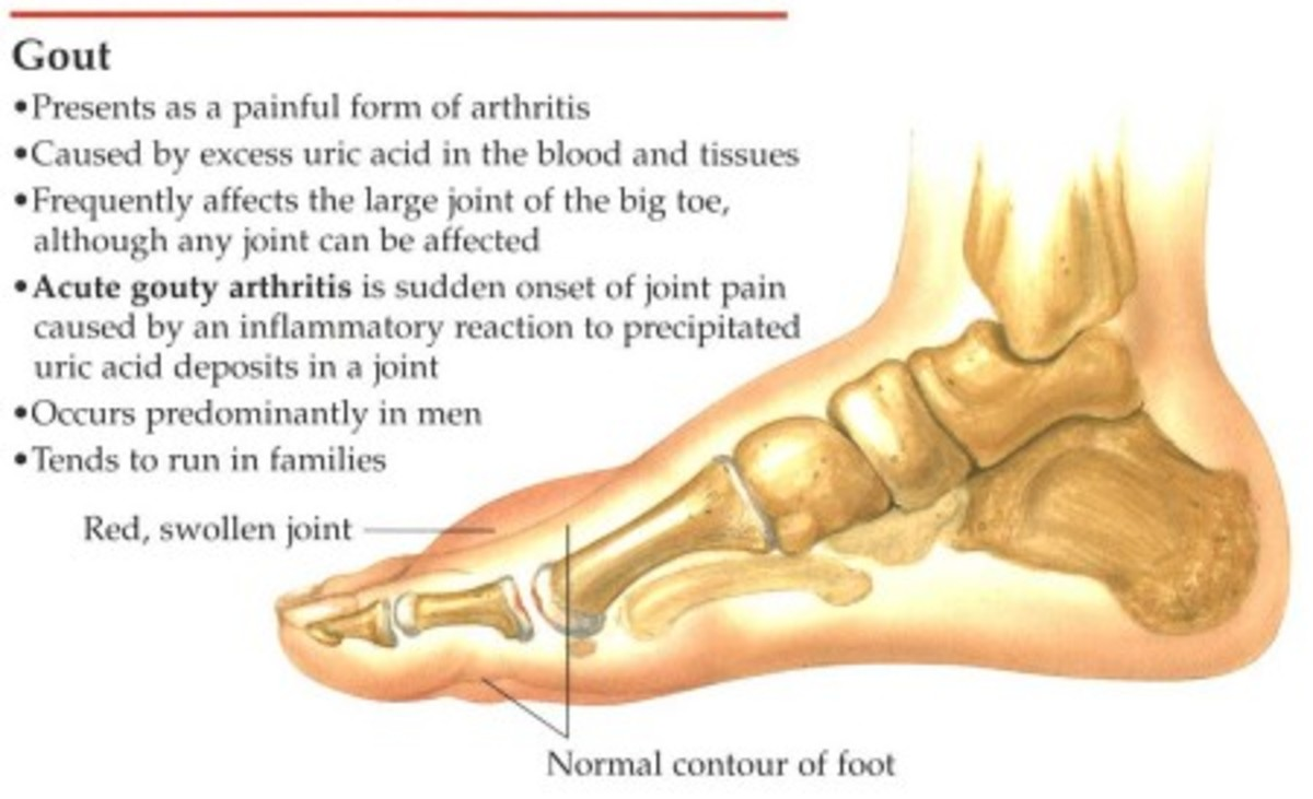 Gout (photo courtesy of  http://www.drdanielbank.com/gout.htm)