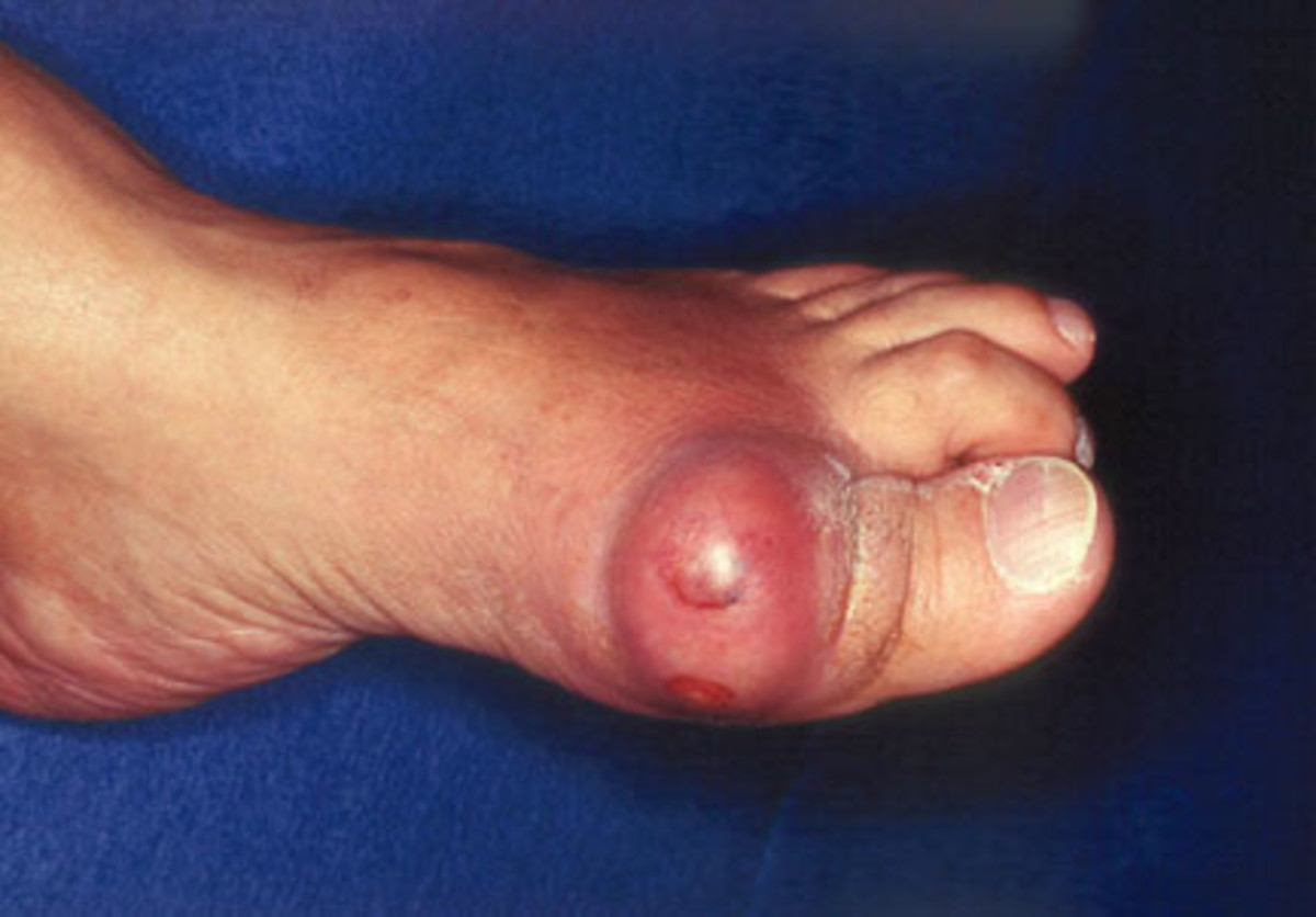 Acute podagra due to gout in an elderly man.