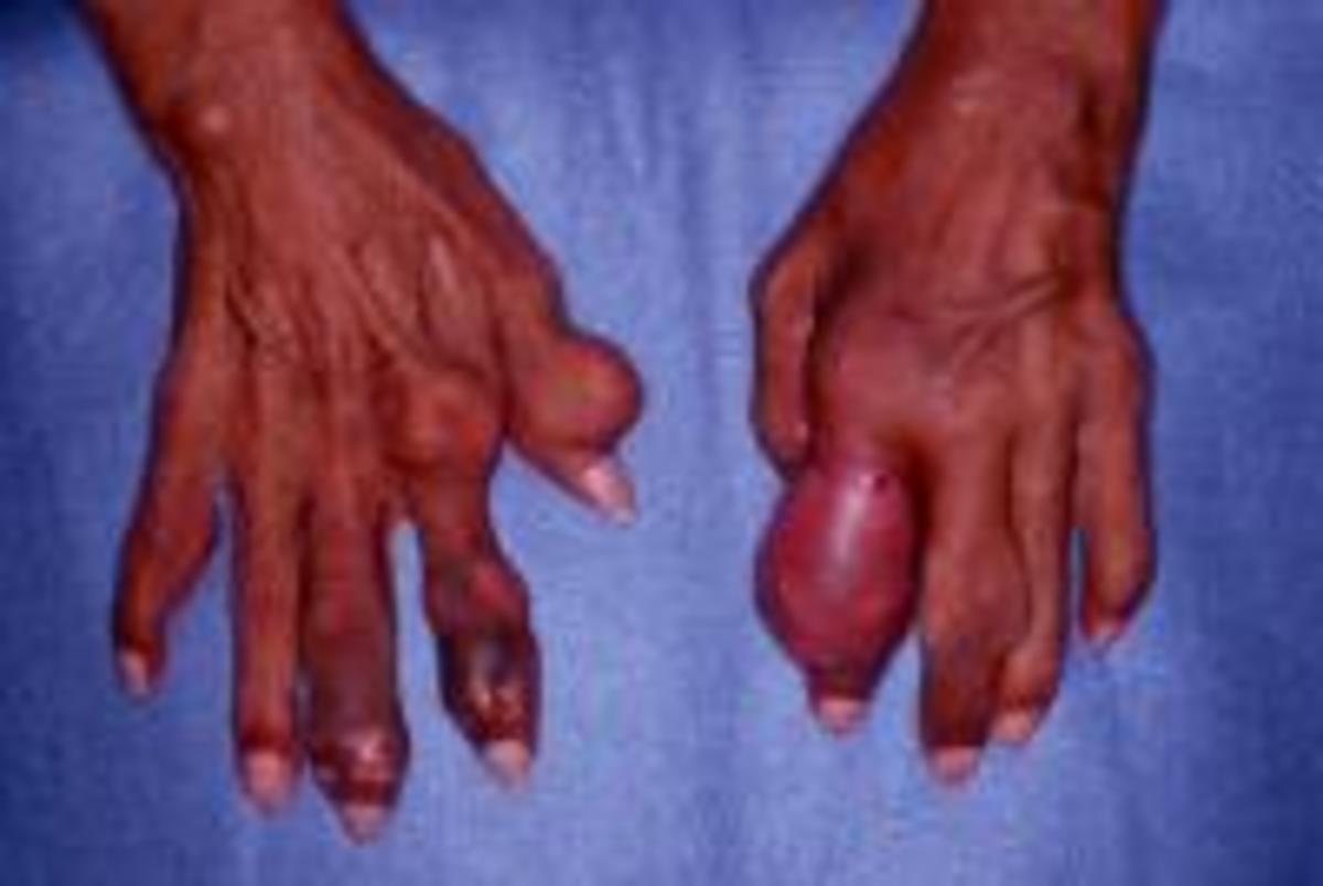 Chronic tophaceous gout in an untreated patient with end-stage renal disease.