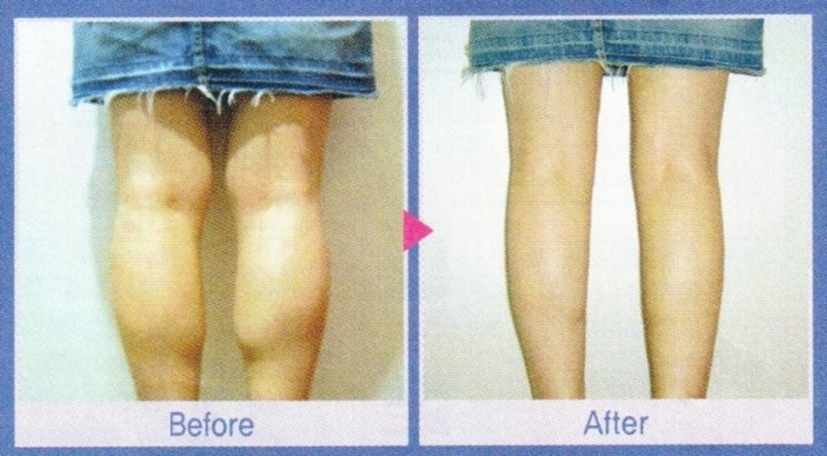 How to get skinny legs by cutting off muscle
