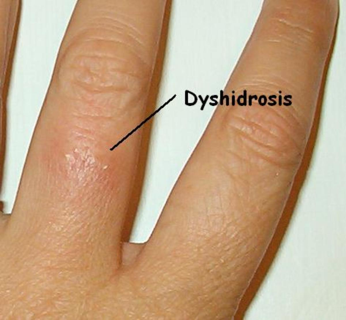 dyshidrosis | hubpages