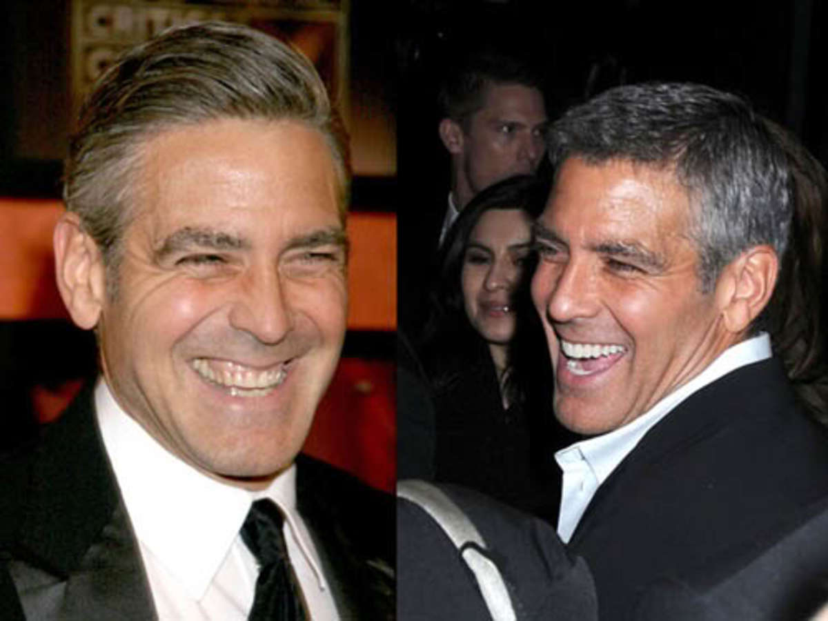 George Clooney before and after veneers.