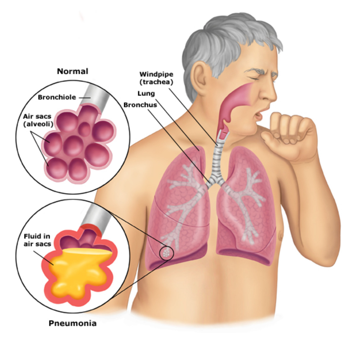Pneumonia Visually...