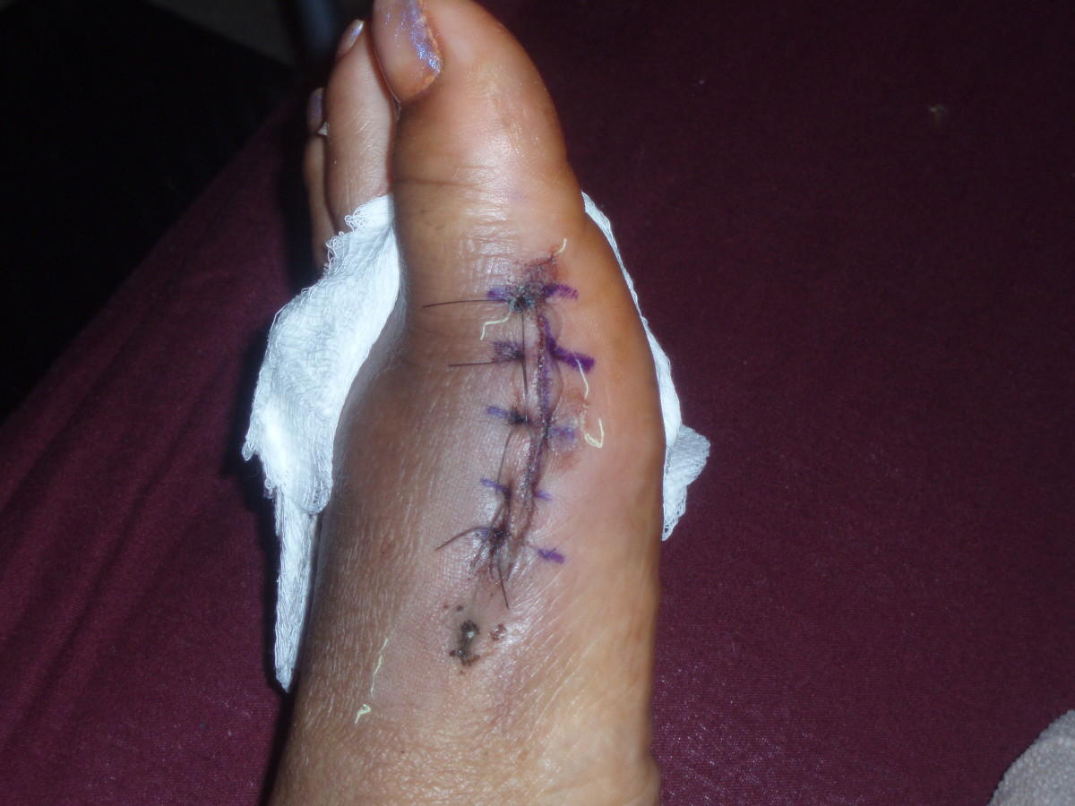 My foot 5 days after bunion surgery- the scar