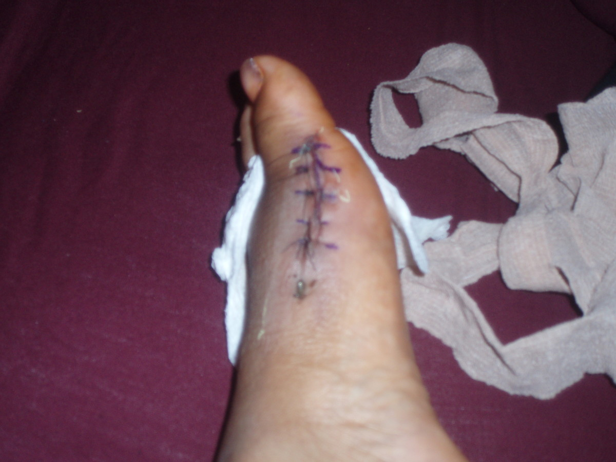 Image of my foot 5 days after bunion surgery- the scar.