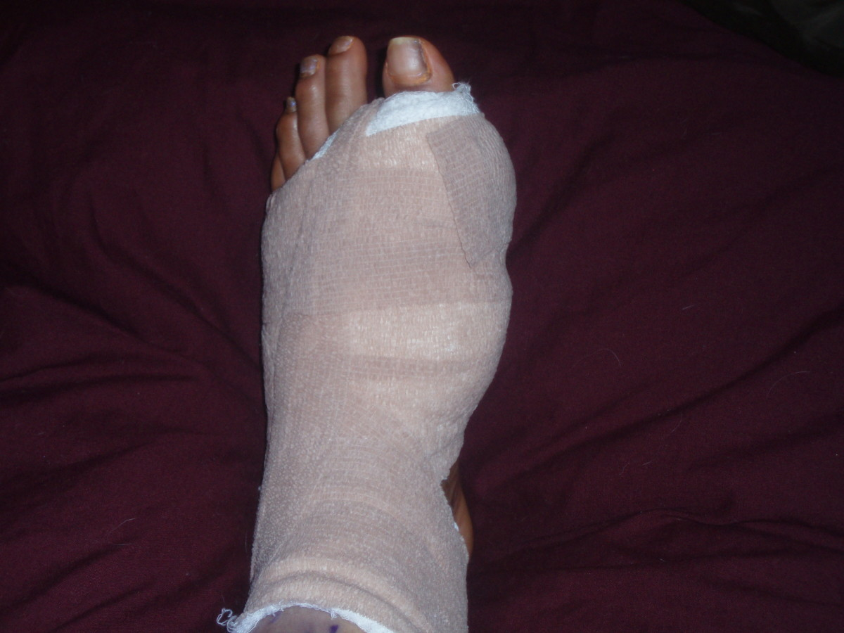 My foot after bunion surgery- bandaged