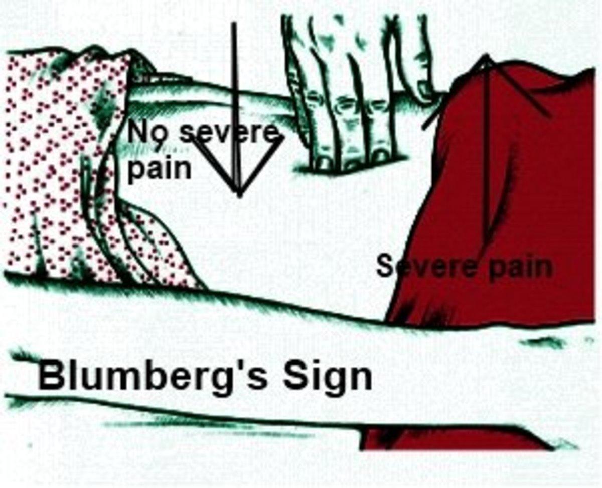 Testing Blumberg's Sign