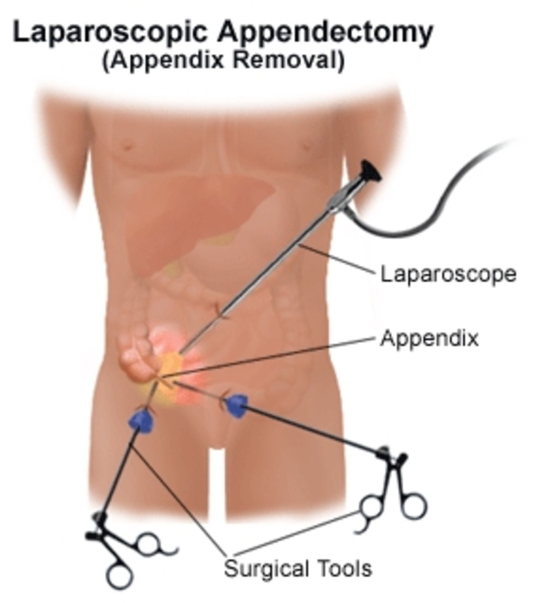 Image of laparascopic appendectomy. 3 or 4 small incisions made and appendix removed.