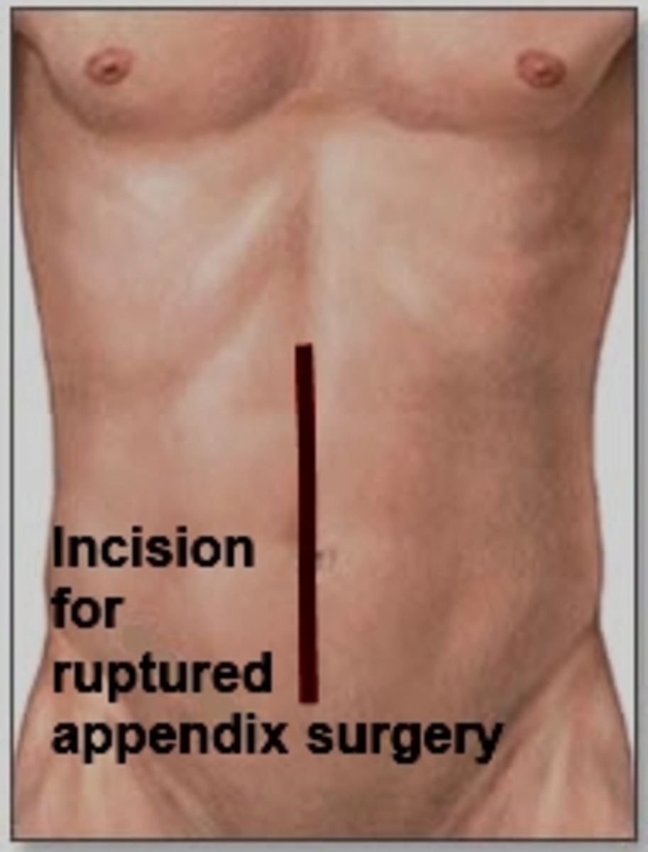 Shows the incision that may be made in case of a ruptured appendix.
