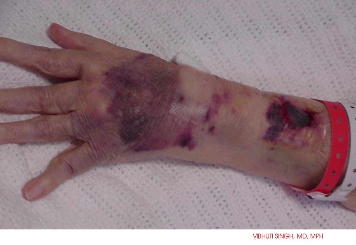 "Bleeding caused by Warfarin - Coumadin, medicine called it "" Necrological manifestation of cardiac disease"", altough is side-effect of Warfarin"
