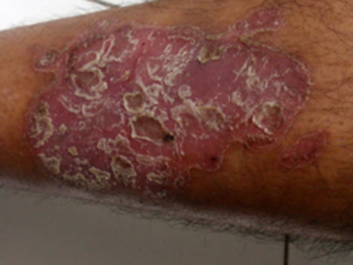 Psoriasis And Arthritis. How Terrible Can It Get? Does Chemo Work?